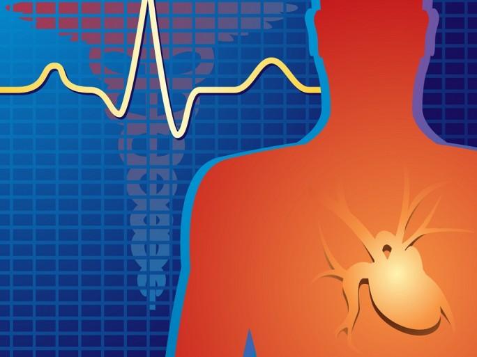 heartpacemakerimplanttop - © Dmitry Skvorcov - Fotolia.com