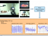 Xerox XRCE - Monitoring vital signs by video